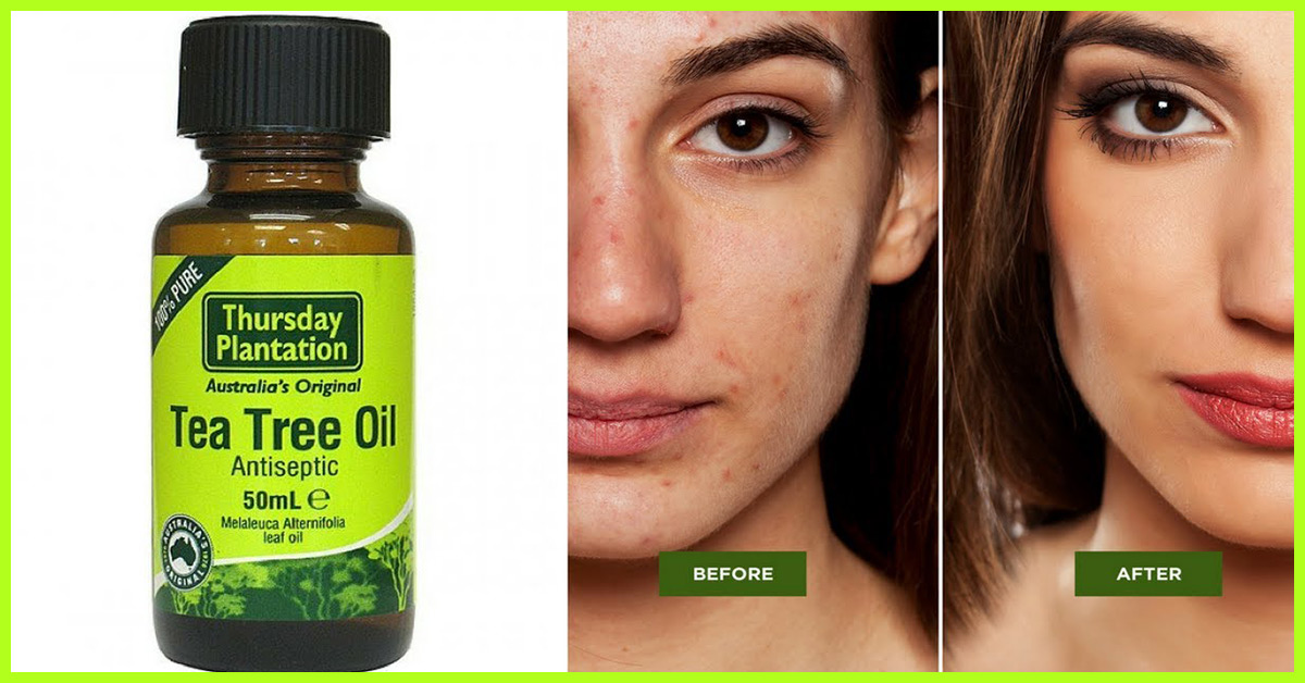 How to Use Tea Tree Oil for Acne Treatment Today?